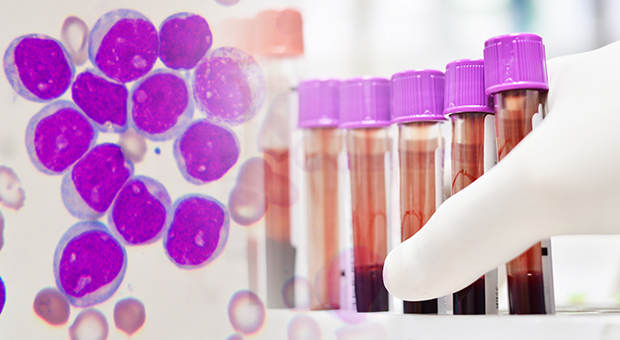 Leukemia cells and scientist testing in laboratory