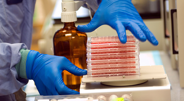 A lab technician's hands are pictured holding a tray of samples. A laboratory bottle is visible in the background.