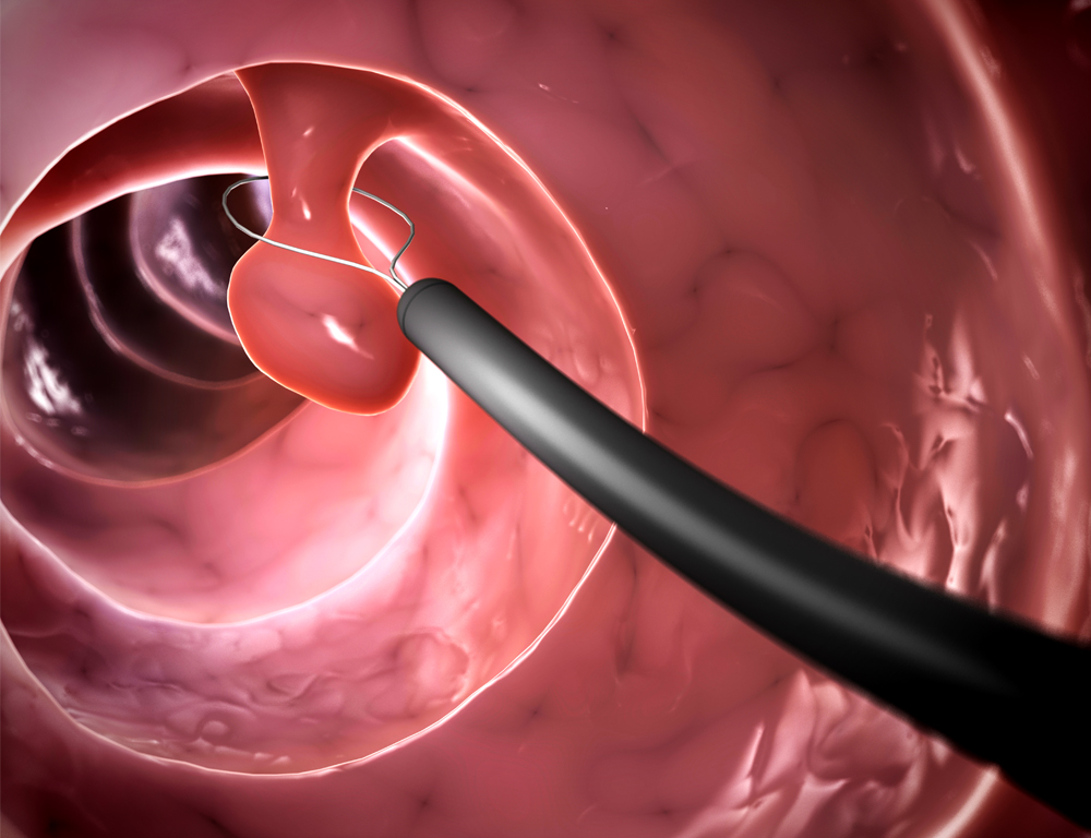 Internal depiction of a polyp being removed from inside of a colon.