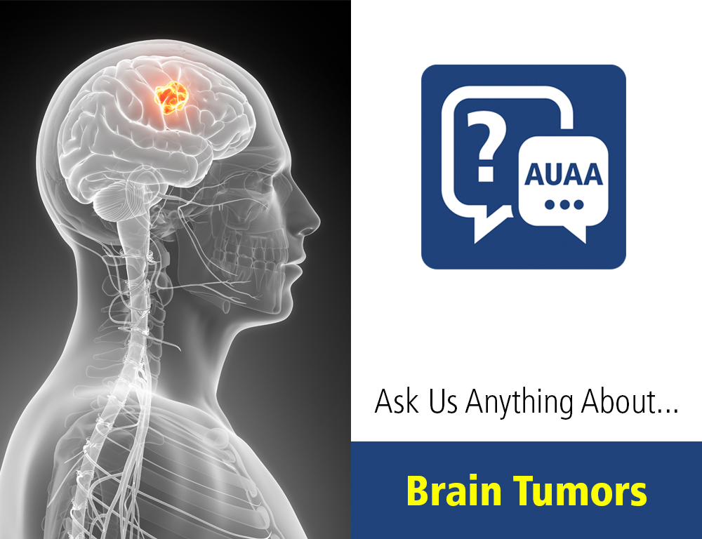 Ask Us Anything About Brain Tumors
