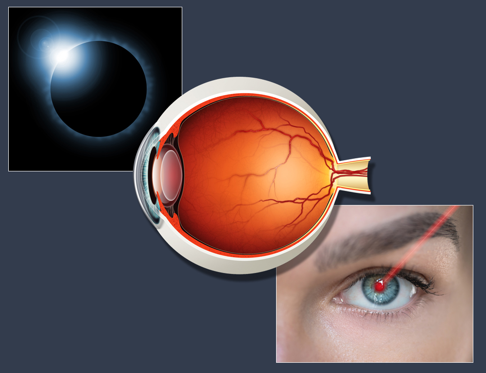 Three overlapping images, one depicting a solar eclipse, one side angle of a retina and the third depicting a red laser shining into an eye.