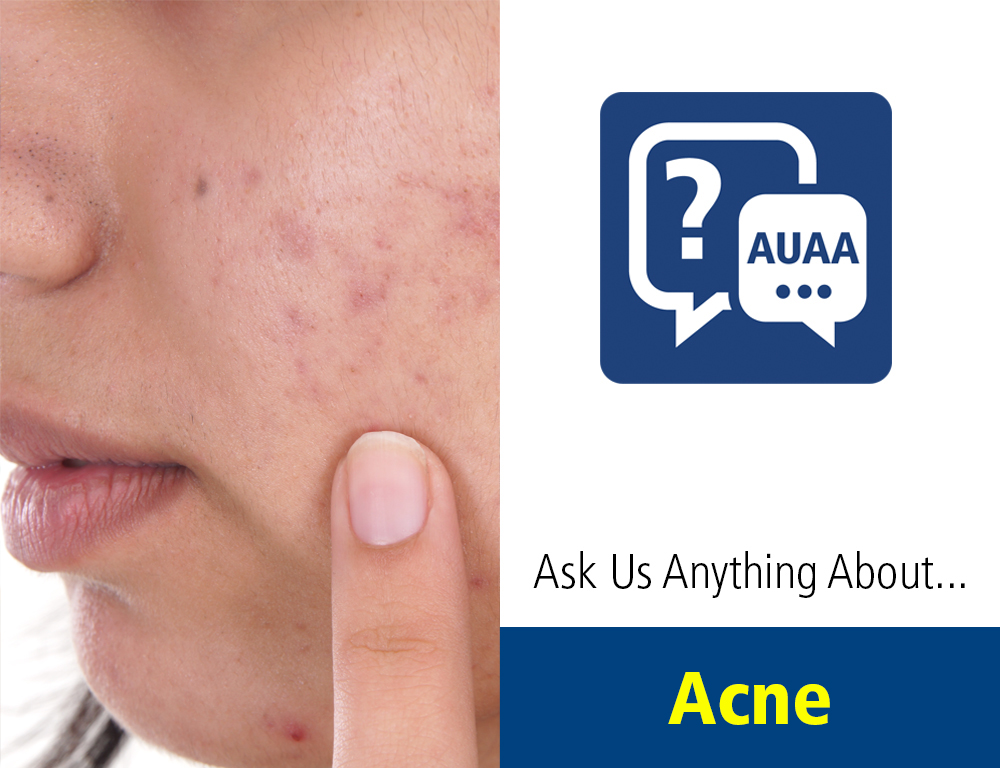 Ask Us Anything About... Acne