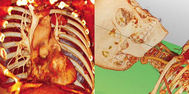 An anatomical image of the heart and chest is seen, with an anatomical image of a skull and upper skeleton next to it.