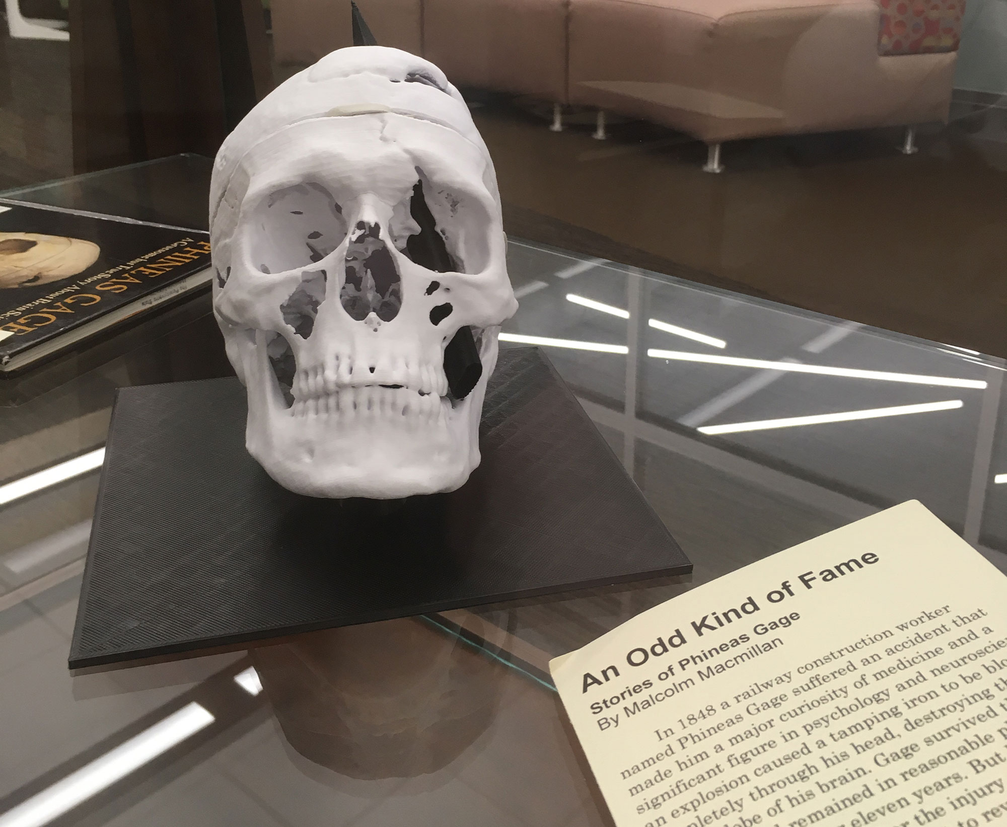 A 3D-printed replica of the skull of Phineas Gage and a copy of an 1850s manuscript about him are seen in a display case.