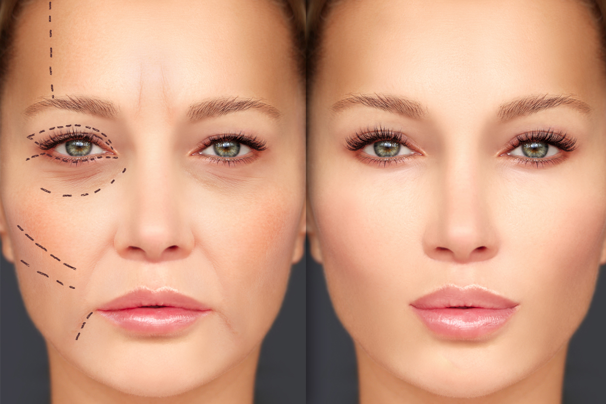 Side-by-side depictions of a woman's face. The image on the left has lines drawn on it.