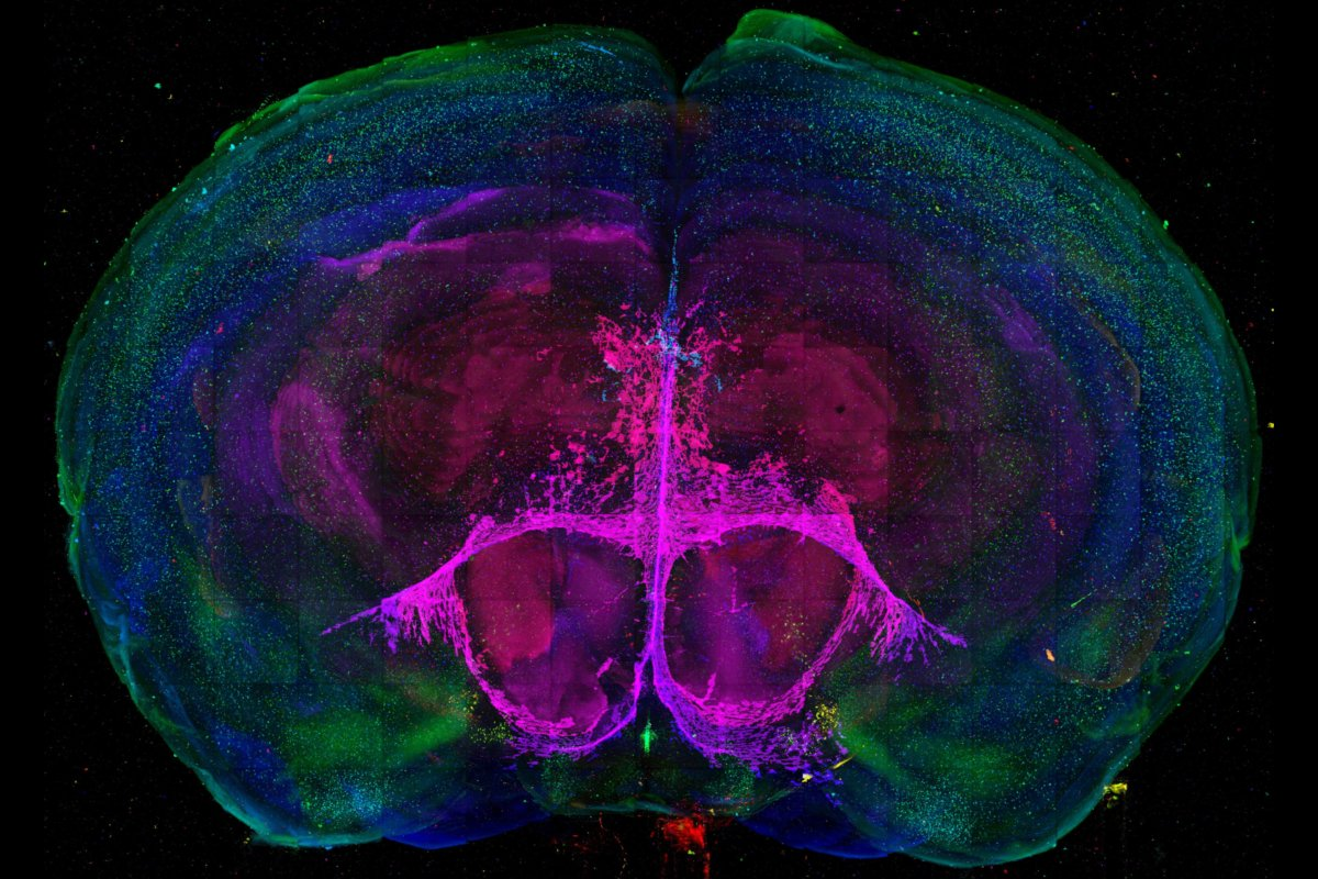 A map of cell types in a developing mouse brain
