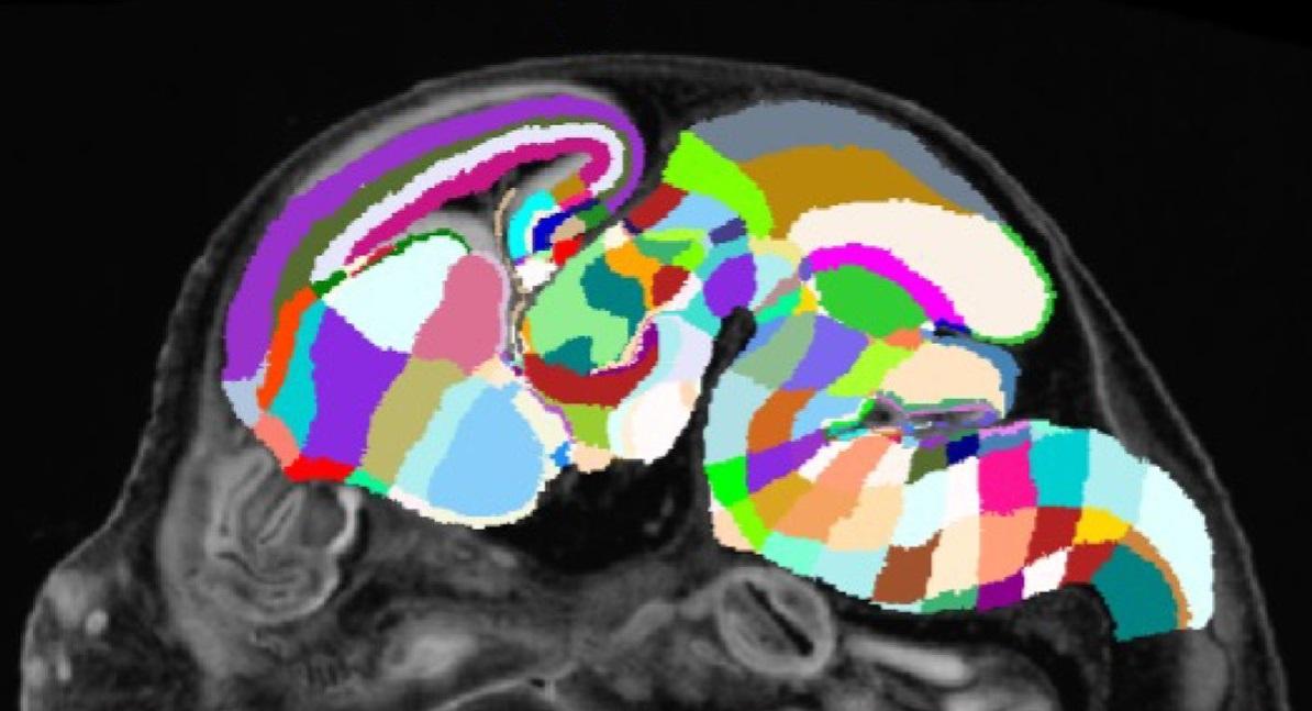 An image of a mouse brain has it's different sections labeled using various colors.