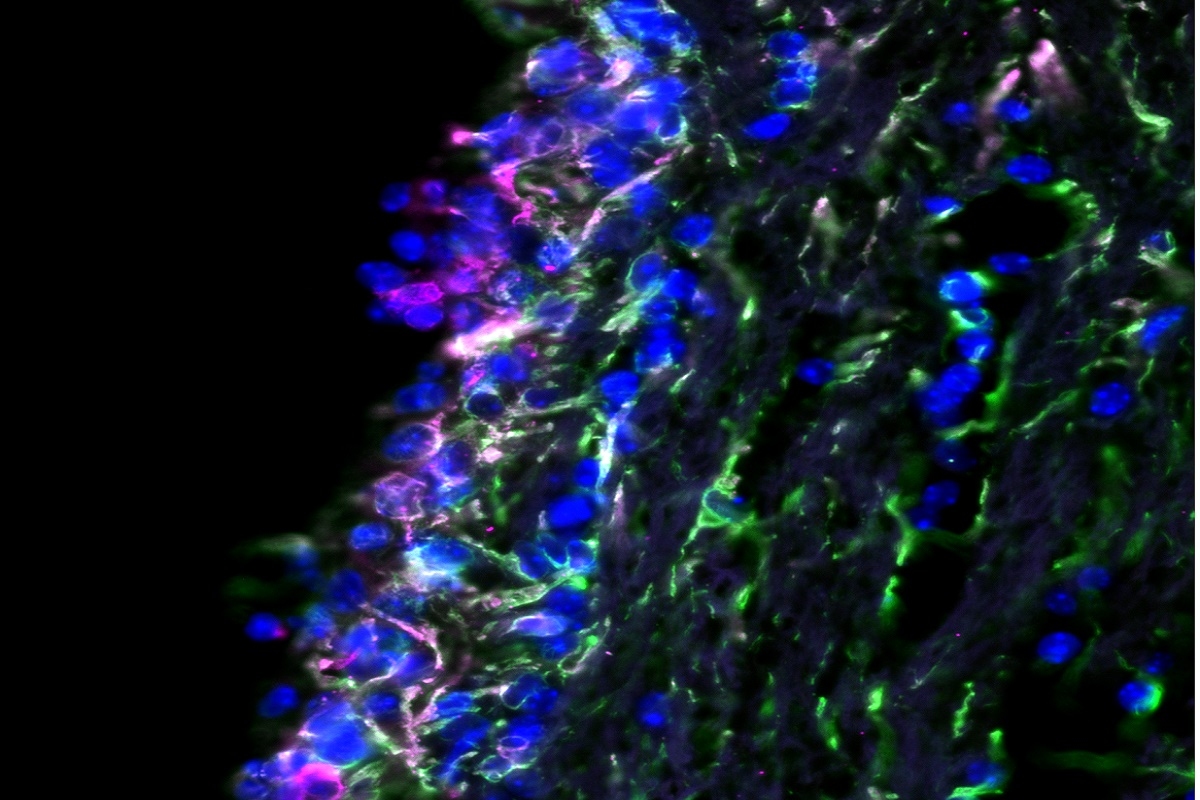 A microscopic image of a tissue section of the barrier between spinal fluid and brain.