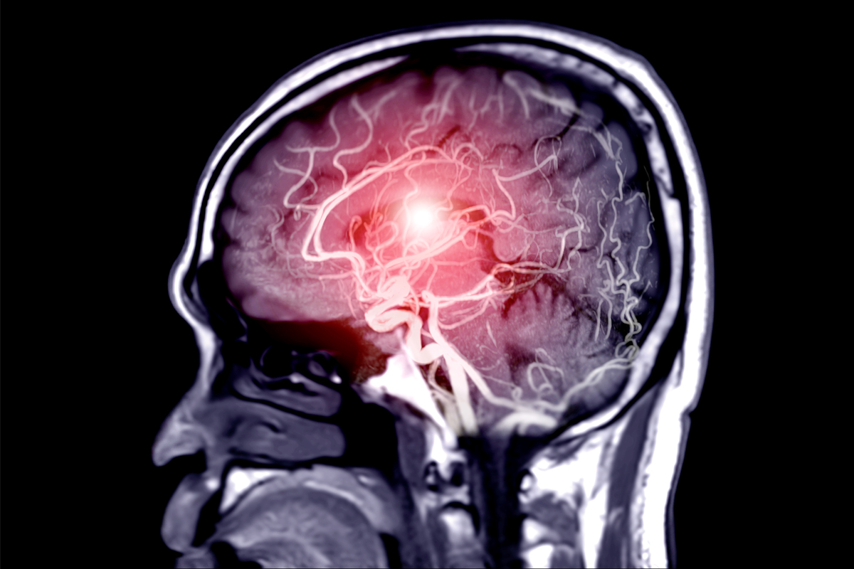 A composite x-ray and illustration depicts a hemorrhagic stroke.