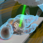 An animated image depicts a patient lying down and being treated with a beam of radiation from the MRIdian Radiation Therapy System.